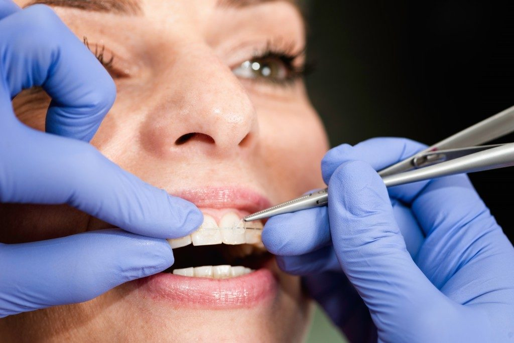 close up picture of woman getting dental braces