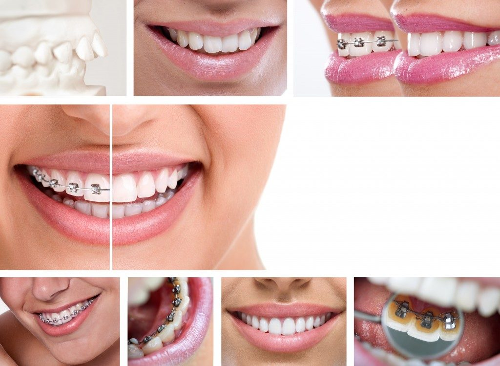 dental braces - lingual braces, before and after