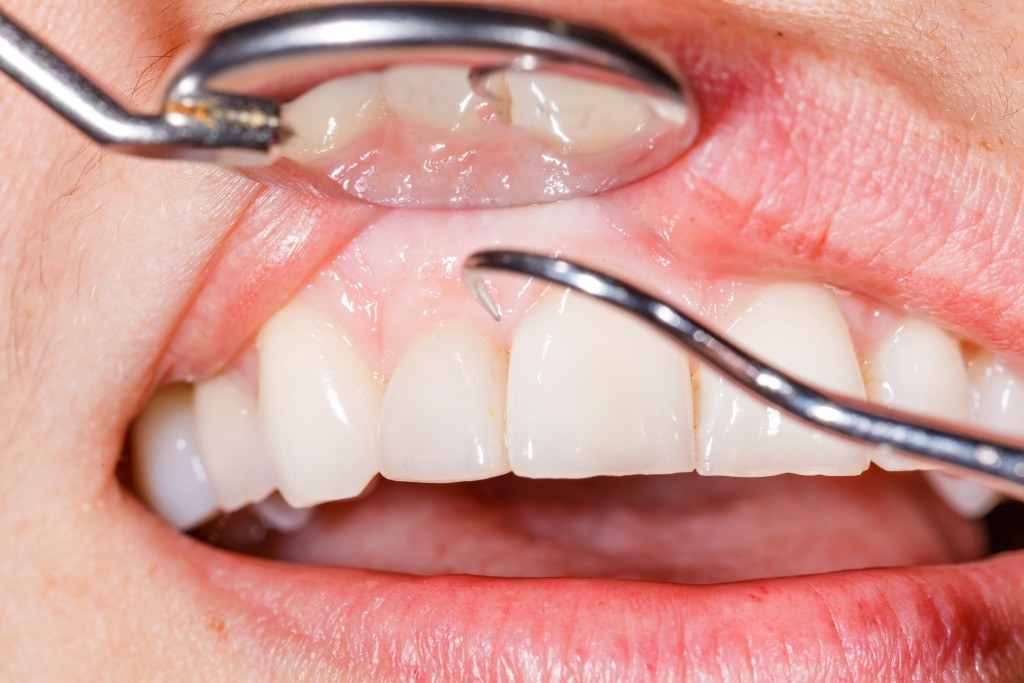 Close up dental examination