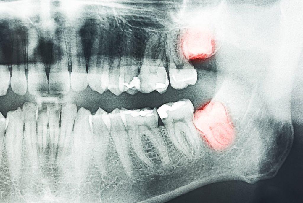 dental xray